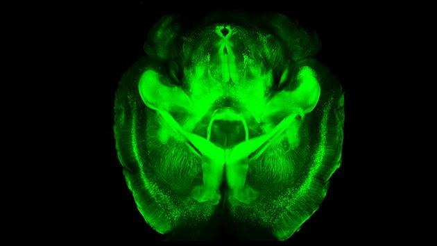 clarity, cerebro transparente